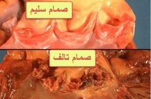 التهاب بطانة القلب المُعدي