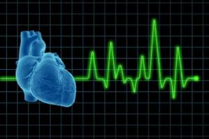 إضطراب نظم القلب