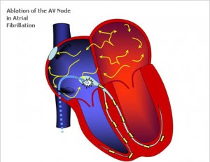 heart34