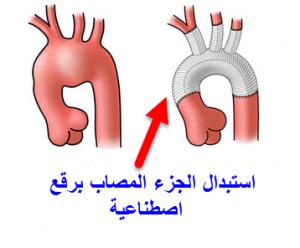 جراحة اصلاح تمدد الشريان الأورطي الصدري