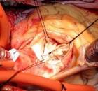 جراحه الصمام الاورطى