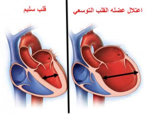 اعتلال عضله القلب التوسعي