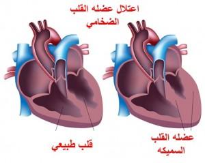 اعتلال عضله القلب الضخامي