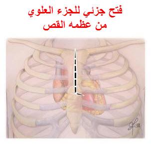 من المصدر); عملية جراحية في المدينة الطبية تم خلالها ادخال تقنية استبدال  الشريان الأورطي بالقسطرة.-(من المصدر)