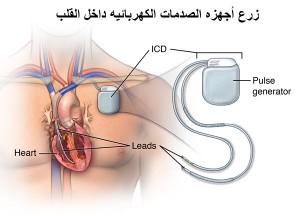 زرع أجهزه الصدمات الكهربائيه داخل القلب