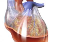 CardiacTamponade_02