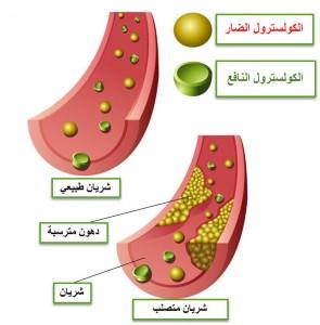 تحليل الكولسترول