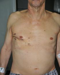 جراحات الصمام الميترالي من فتحة جانبية صغيرة وبدون شق الصدر