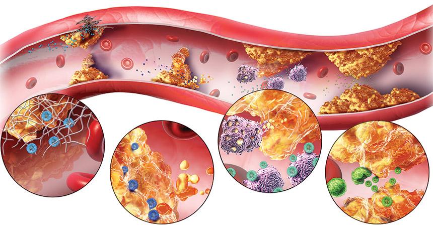 مرض تصلب الشرايين المضاعفات التشخيص و الوقاية