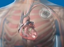 جهاز ضبط تزامن ضربات القلب