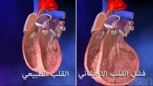فشل القلب